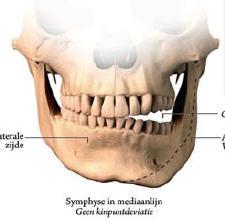 Afb. 1. Weergave van een hemimandibulaire hyperplasie links (©Serge Steenen).