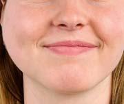 Afb 1. Zwelling van de glandula parotidea rechts, ontstaan in 2 dagen.