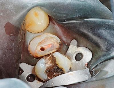 Afb. 5. Premolaar met weinig resterend gebitsweefsel waarbij gebruik van het wortelkanaal ten behoeve van retentie voor een funderingsrestauratie is geïndiceerd.