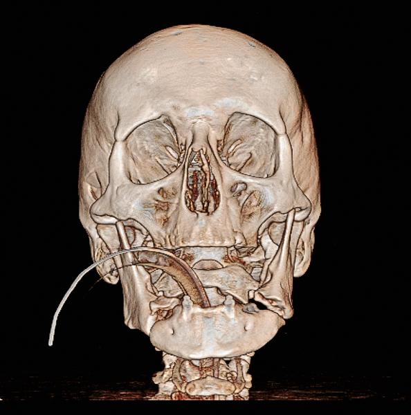 Driedimensionaal beeld van de mandibula met aan beide zijden een gefractureerd corpus mandibulae; vooraanzicht.