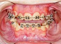 Afb. 2. De anterieure open beet is veroorzaakt door uitgroei van de molaren in de onderkaak; er is nog slechts occlusie mogelijk tussen de laatste molaren in de onder-en bovenkaak.