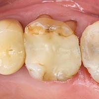 Afb. 8. Occlusale slijtage (voornamelijk attritie) van composiet in de molaar met vergelijkbare occlusale slijtage van de buccale glazuurwand.