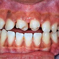 Afb. 4. a. Frontaal aanzicht van de dentitie 3 weken na autotransplantatie en start van de orthodontische behandeling.