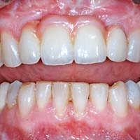 Afb. 1. b. Het resterende kaakdefect is gemaskeerd met roze porselein.