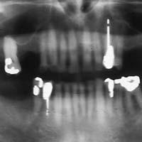 Afb. 2. c. Een extreem verkorte tandboog heeft bij deze oudere geleid tot minimale functies van het occlusiesysteem die wel als voldoende worden ervaren.  Panoramische röntgenopname.