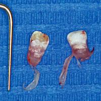 Afb. 2. Neonatale gebitselementen met aanwezigheid van de schede van Hertwig, links linguale zijde, rechts buccale zijde.