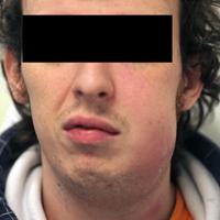 Afb. 2. a. Patiënt met een zwelling van de wang links.