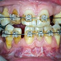 Afb. 2. c. Een 45-jarige patiënt bij wie 10 gebitselementen ontbraken en een mesiale occlusie aanwezig was; vóór behandeling; tussenfase van de postchirurgische en preprothetische orthodontische behandeling met vaste apparatuur.