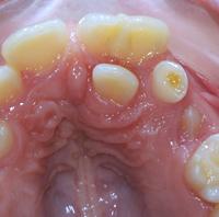 Afb 4. Klinische beelden van een gefuseerd boventallig gebitselement met gebitselement 21 bij een 10-jarige jongen.