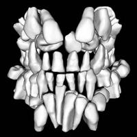 Afb. 2. Driedimensionale reconstructie van een cone beam-computertomogram.