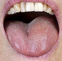 Afb. 2. Klinisch aspect van de unilateral diffuse zwelling van de tong links