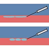 Afb.3.a. Boven de intracutaan getrokken lijntjes (linear threading). Onder de serial puncture techniek.