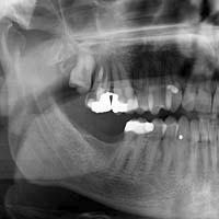 Afb. 1. Panoramische röntgenopname van patiënt.