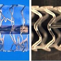 Afb. 2. Aan de linkerzijde is een 'drug eluting stent' (DES) te zien en aan de rechterzijde een biologisch oplosbare stent.