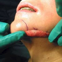 Afb. 2. d. Peroperatieve opname waar wordt getoond op welke plaats het prejowl-implantaat zal worden aangebracht.