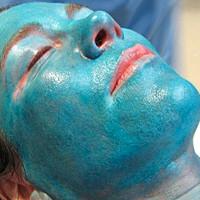 Afb. 3. a. Een patiënt werd behandeld met een middeldiepe chemische peeling met trichloorazijnzuur.